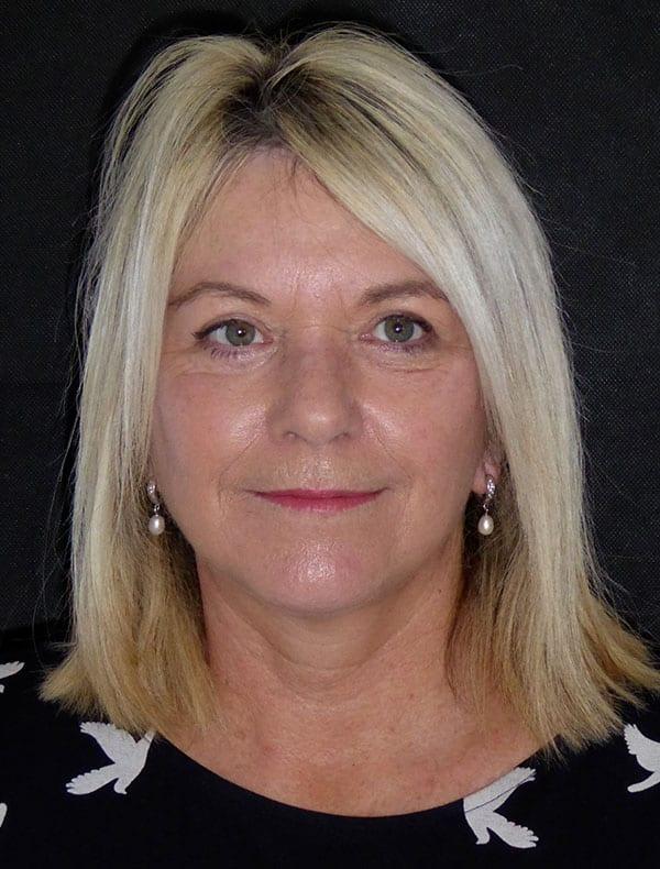 Sandra, 53