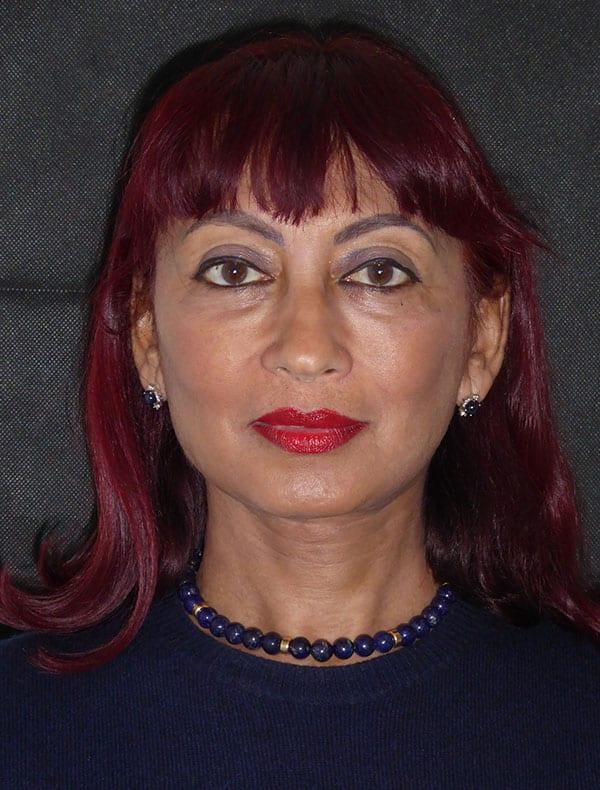 Sara, 65