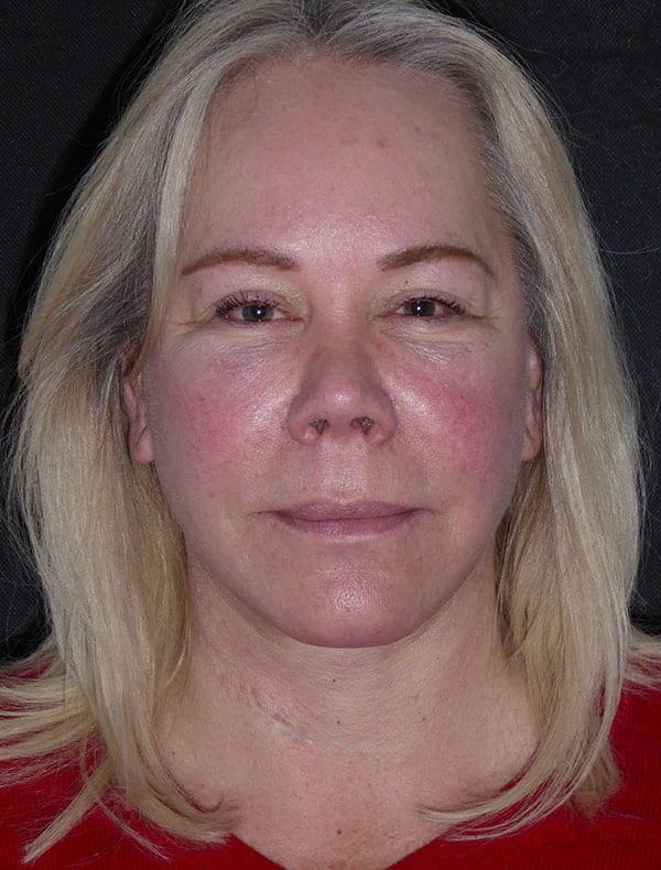 Sharon, 58