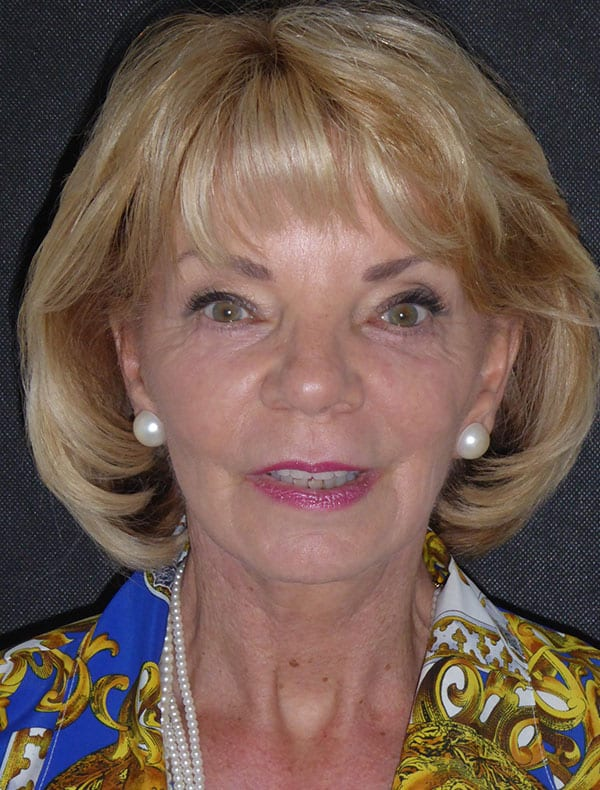 Shirley, 64