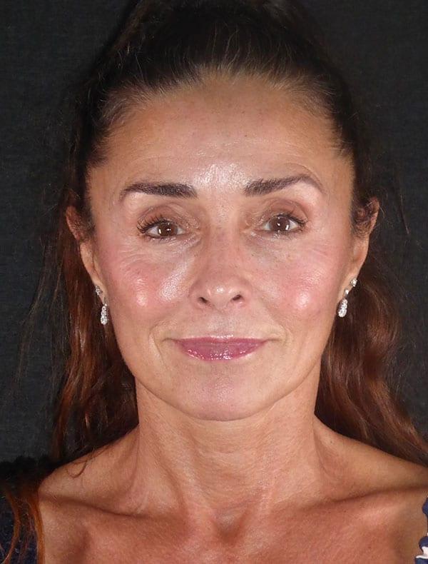 Sophie, 54