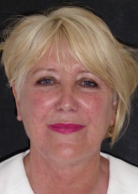 Sue, 63