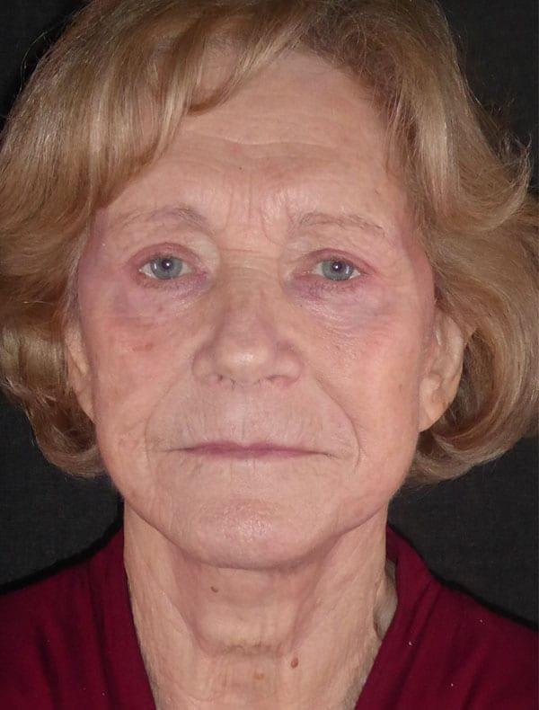 Sue, 72