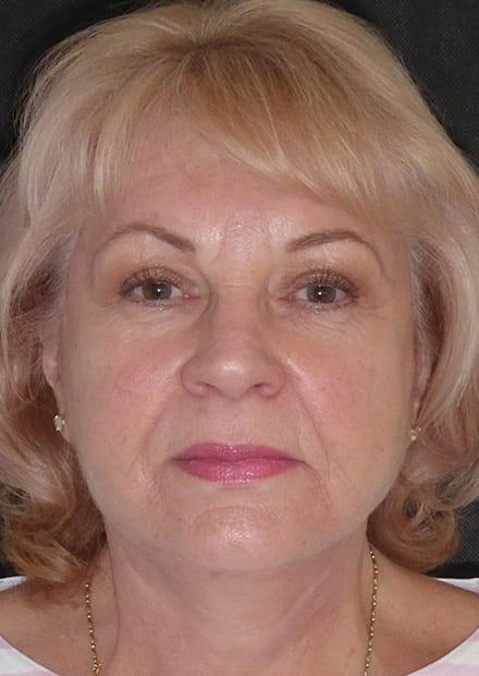 Susan, 65