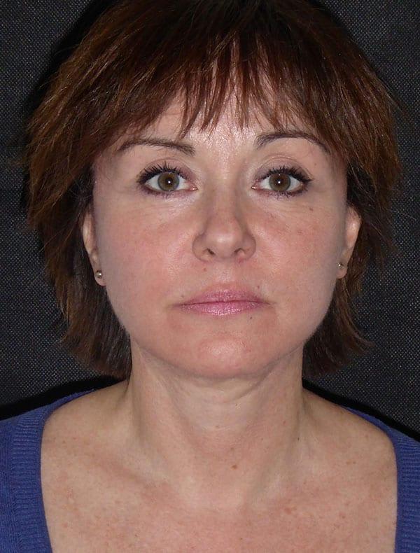 Susie, 53