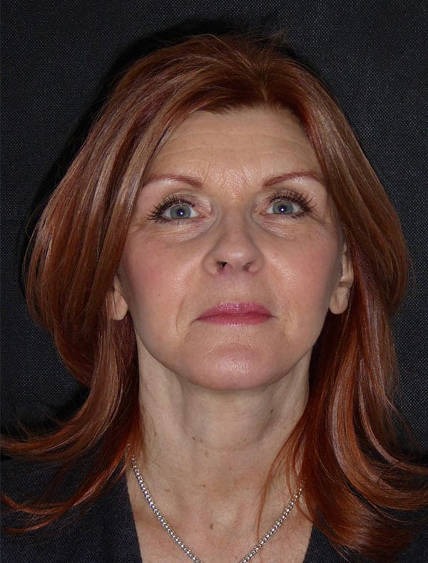 Tania, 56