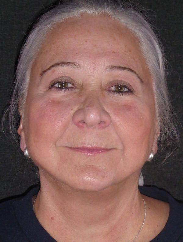 Tessa, 62
