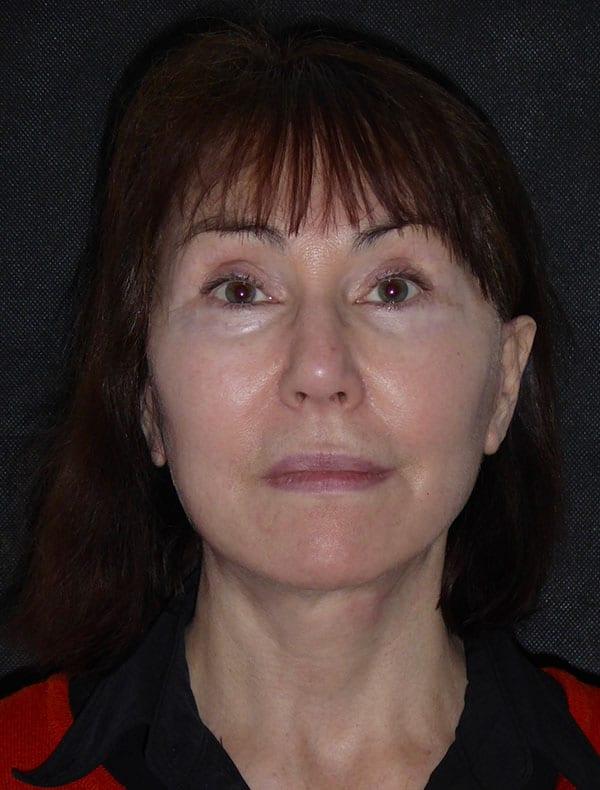 Theresa, 57
