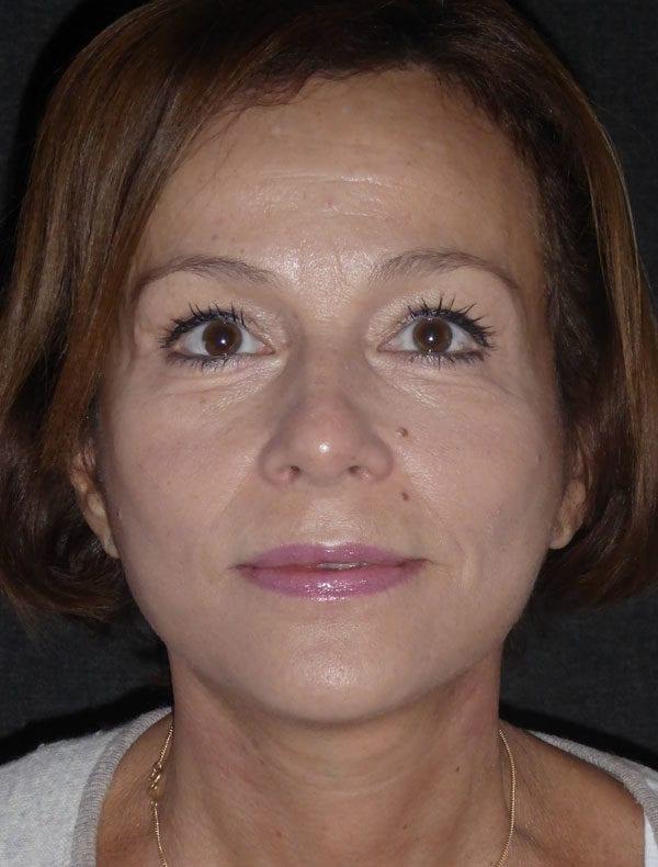 Truda, 56