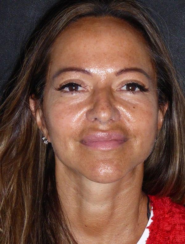 Veronica, 53