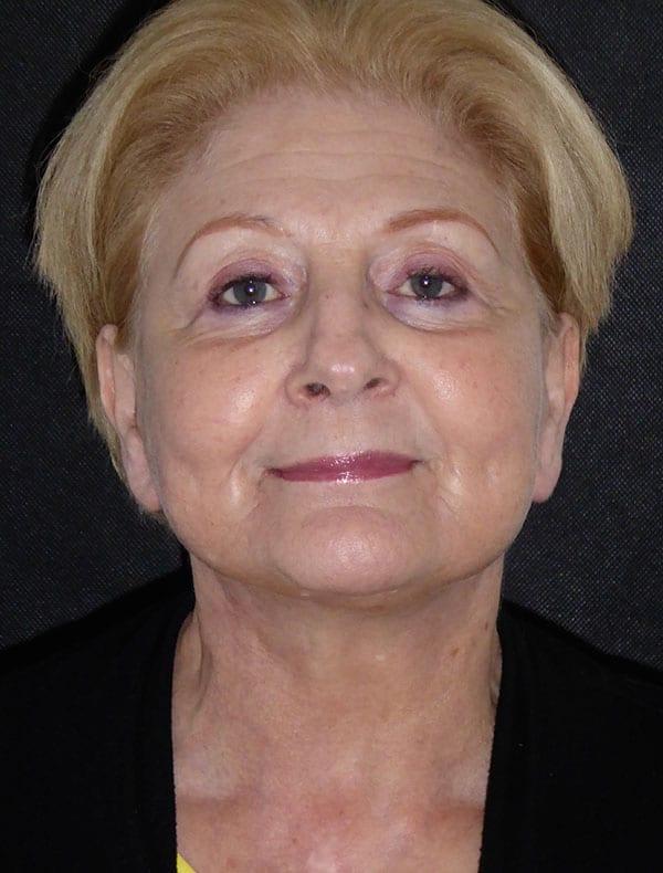 Zoe, 69