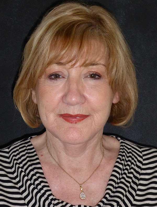 Annette, 63