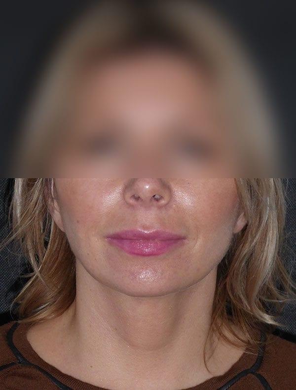 Emma, 46