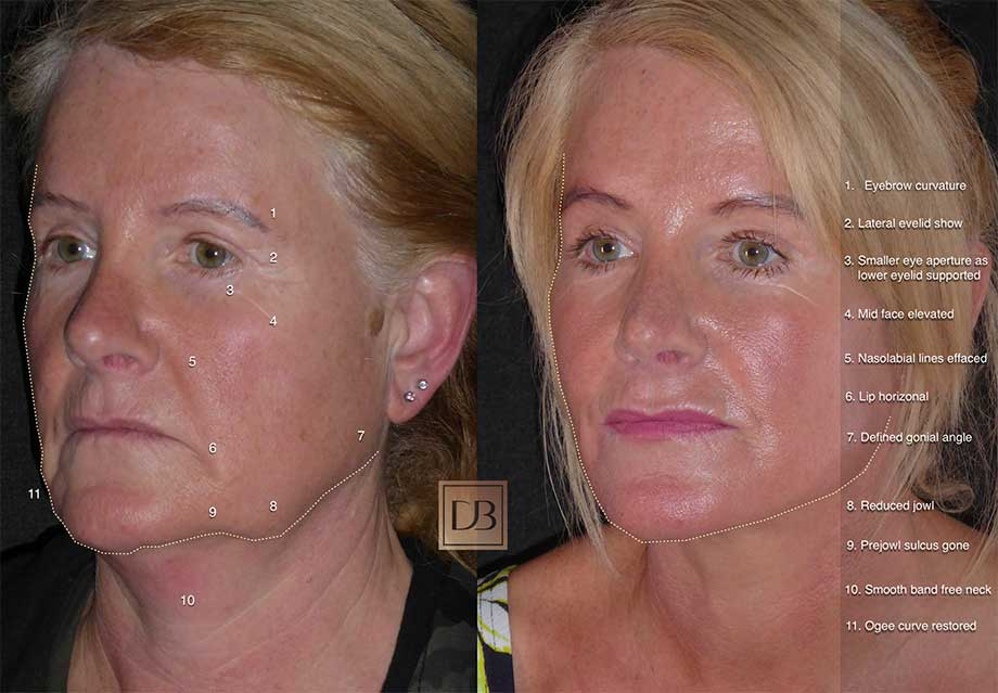 What makes a great facelift?