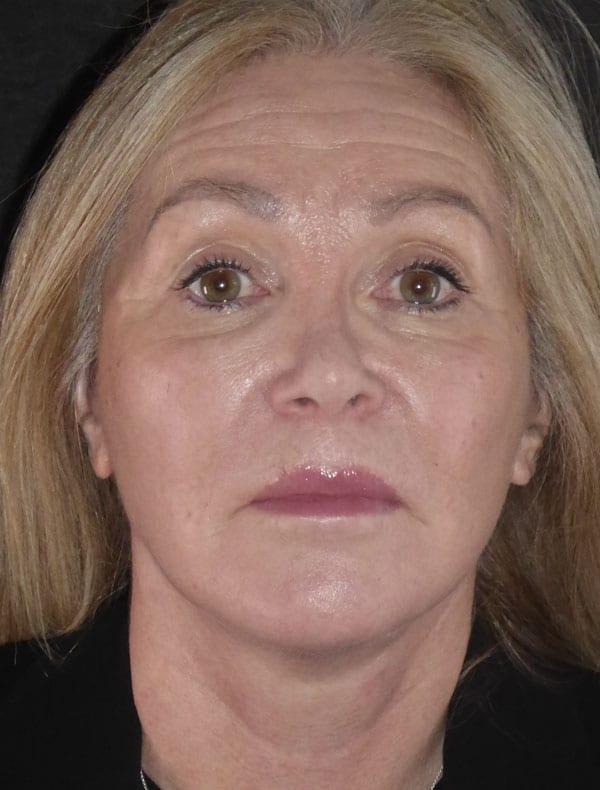 Julie, 61