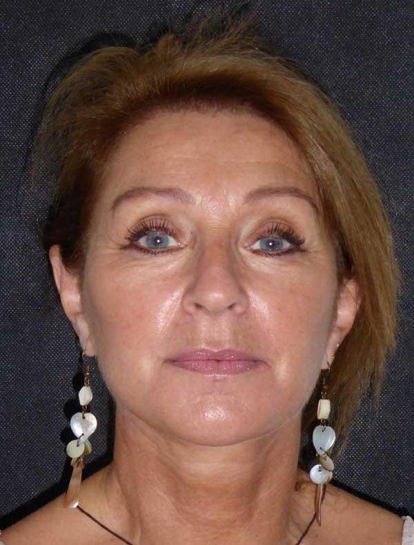 Linda, 59