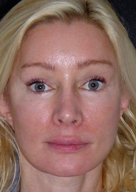 Melanie, 51