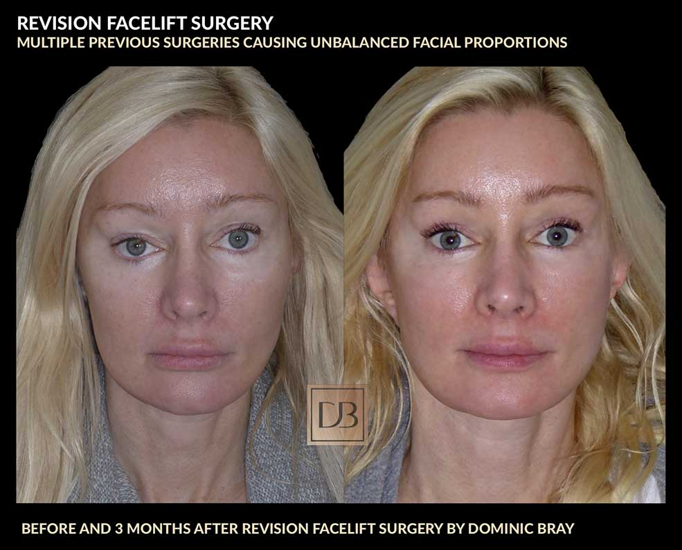 Multiple facial surgeries