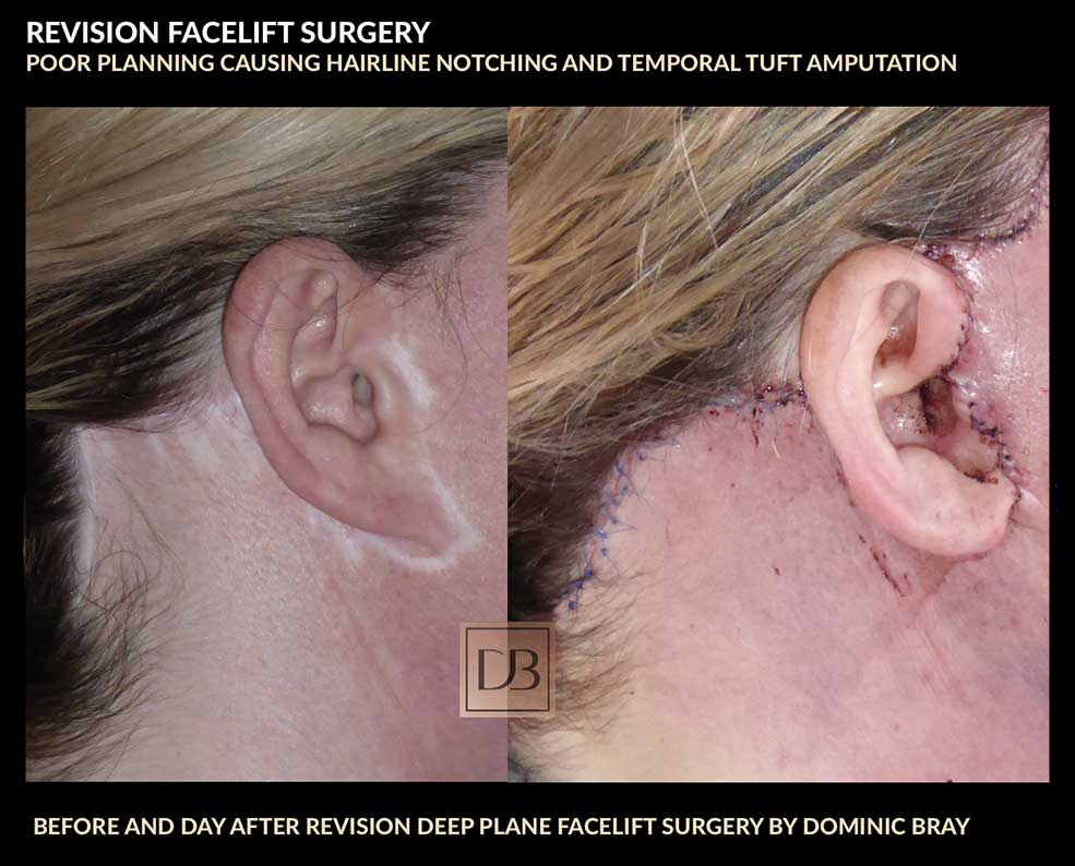 facelift revision